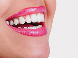 a perfect smile following a visit to the dental hygienist in sidcup