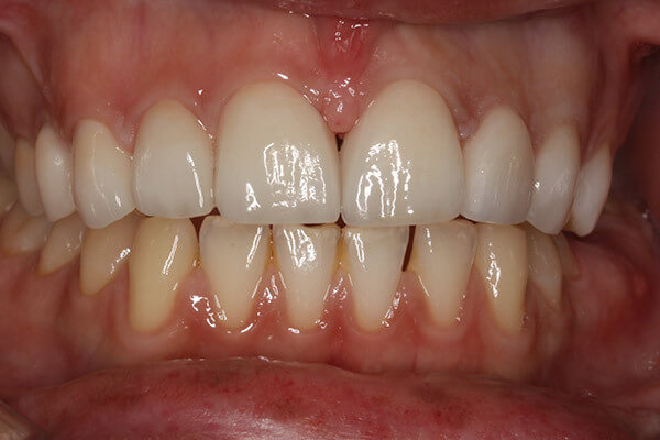 4 veneers placed following tooth whitening