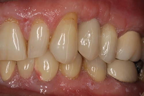 The space is closed with a new ceramic tooth fixed to the implant
