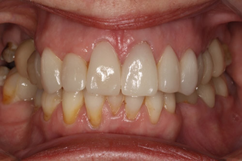 Following extraction, implants Root treatment and veneers
