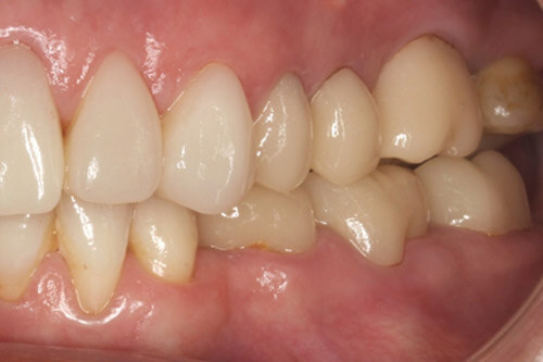 Following amalgam removal, extraction, root treatment and ceramics.