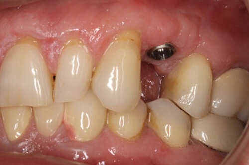 An implant is placed at gum level.