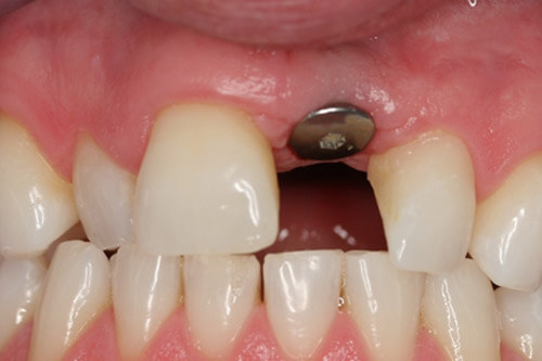 The implant is placed at gum level