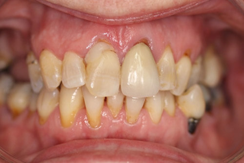 Old discoloured fillings, poor tooth position and stained teeth.