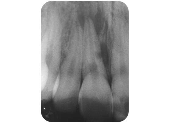 The infection is spreading through the tooth and damaging the supporting bone
