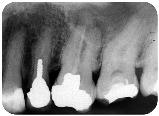A tooth with a deep filling and a root filling that had only sealed 1 of the canals