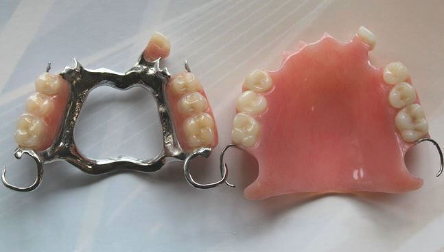 A Cobalt chrome denture   and an acrylic denture