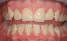 Plaque cannot be seen on the teeth usually