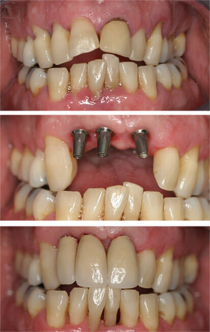 Loose teeth, placed implants, ceramic crowns.