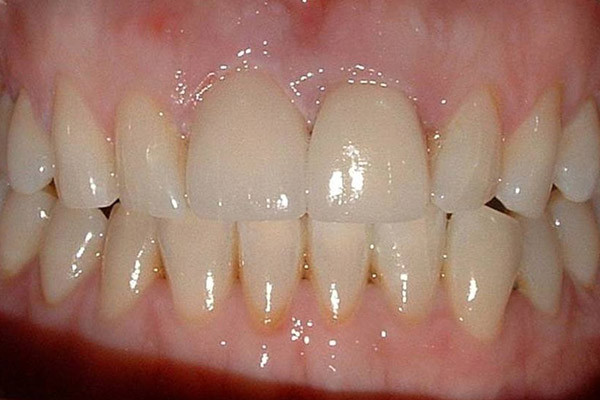 Following tooth whitening the crown was replaced with a ceramic crown