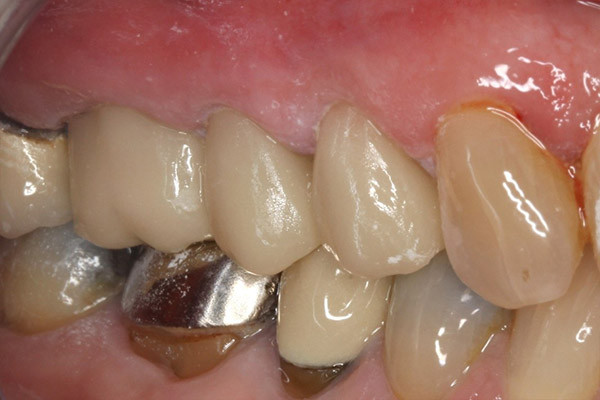 These old crowns were replaced with 3 new ceramic crowns in a single visit