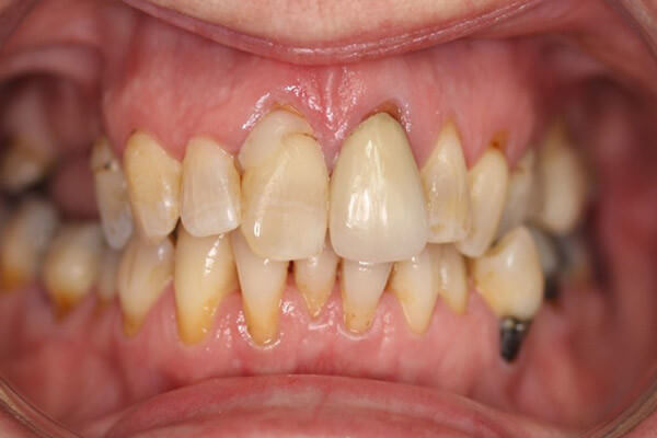 Old silver fillings and discoloured teeth