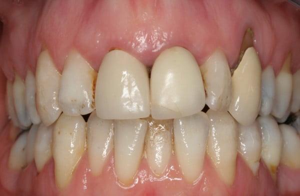 Dark discoloured mis-shaped teeth