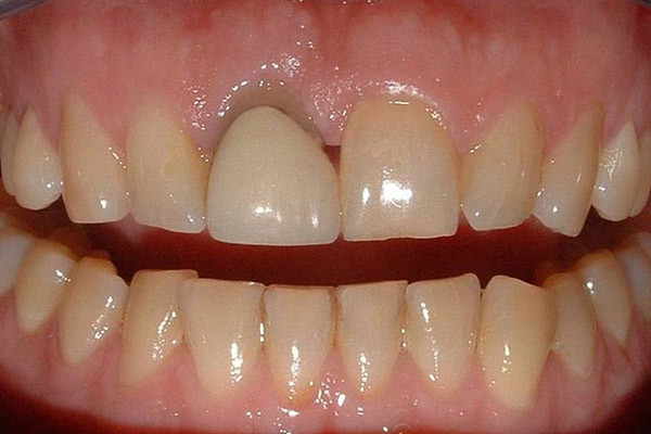 Yellow teeth and incorrectly shaped crown