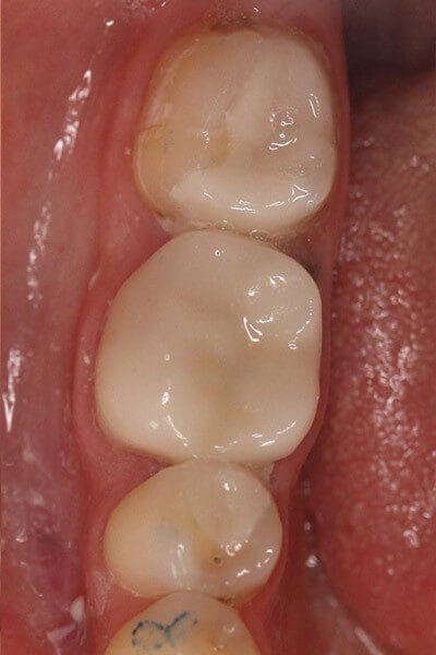 The teeth were cleaned out and restored with bonded ceramic restorations on the same visit.