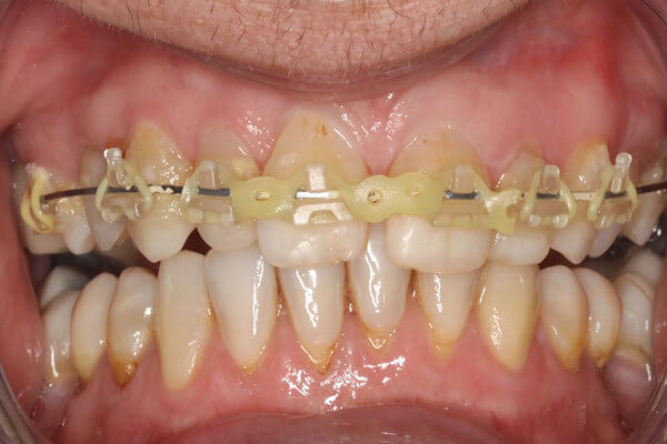 Brace fitted with tooth coloured  brackets