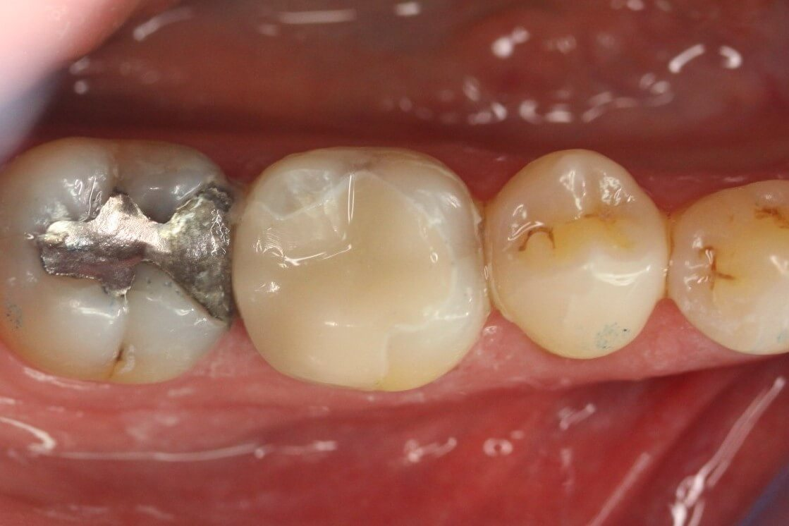 The tooth is restored within one hour with a ceramic restoration