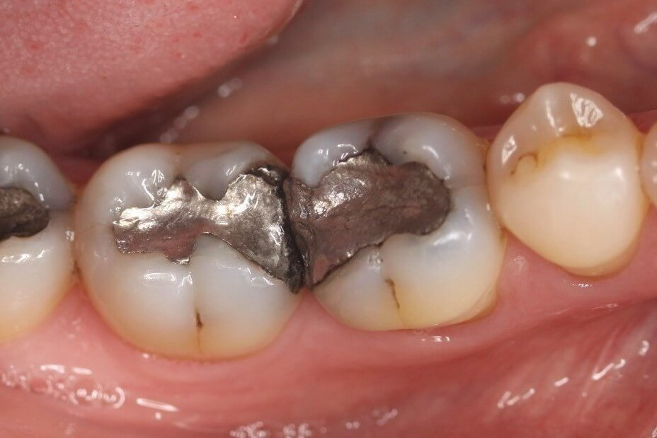 An old amalgam filling is removed
