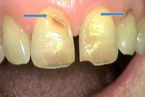 Abfraction wear due to tooth grinding