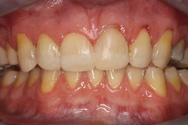 Teeth and bite rebuilt with composite bonding.