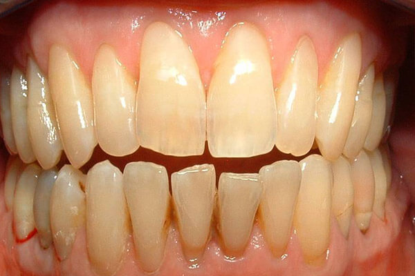 Teeth protected with bonded resin.