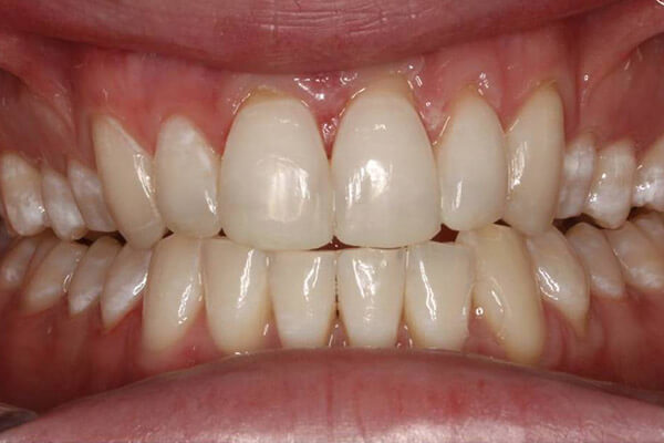 Front teeth rebuilt with bonded resin.