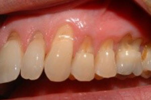 tooth wear treatment sidcup dentist sidcup birkbeck
