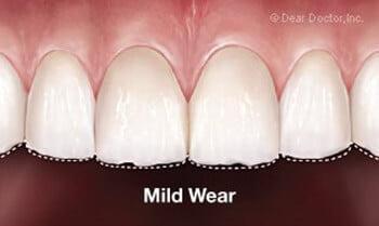 mild-wear