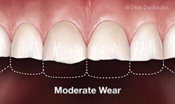 moderate-wear