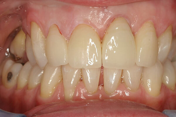 Replaced in a single visit with metal free ceramic crowns